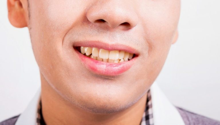 man smiling with yellow teeth