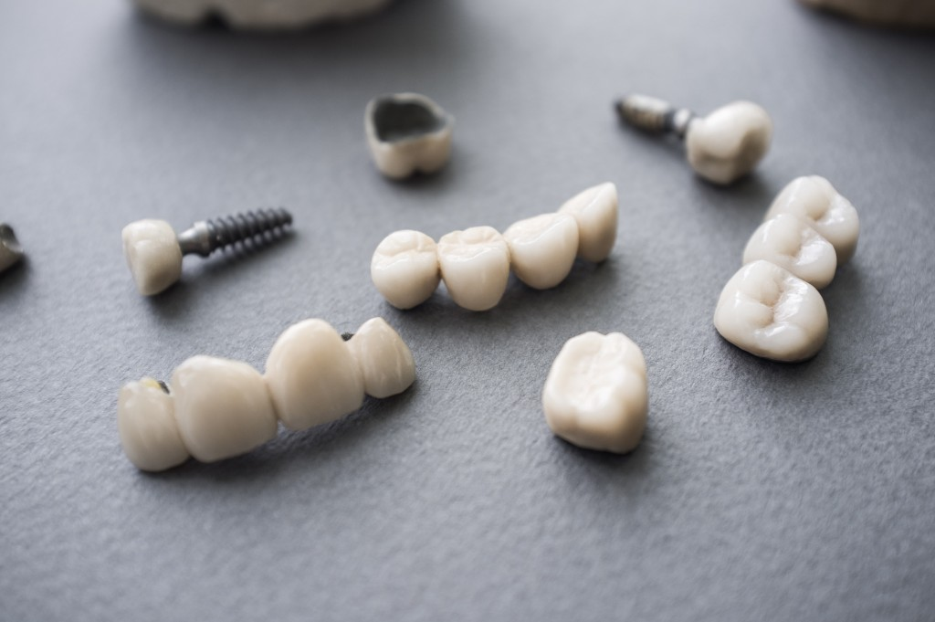 teeth for dental implants